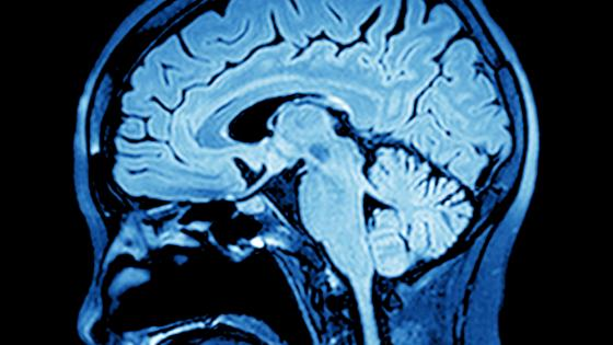 Mri Based Small Vessel Disease Score Linked To Future